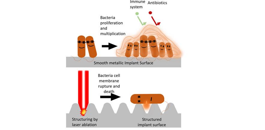 bacteria strains